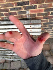 Be careful with the holesaw!